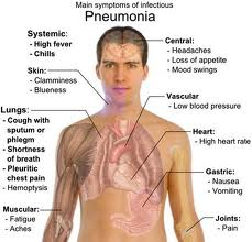Obat Pneumonia Tradisional
